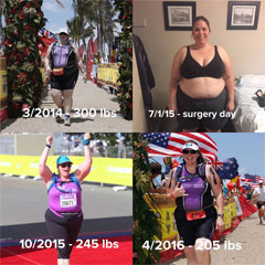 Gastric Sleeve Patient Story Before And After Photos Testimonial