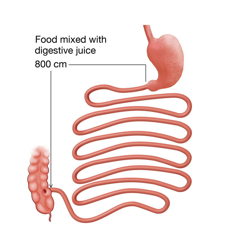 Gastric Bypass Revision Ucla Bariatric Surgery Los Angeles Ca