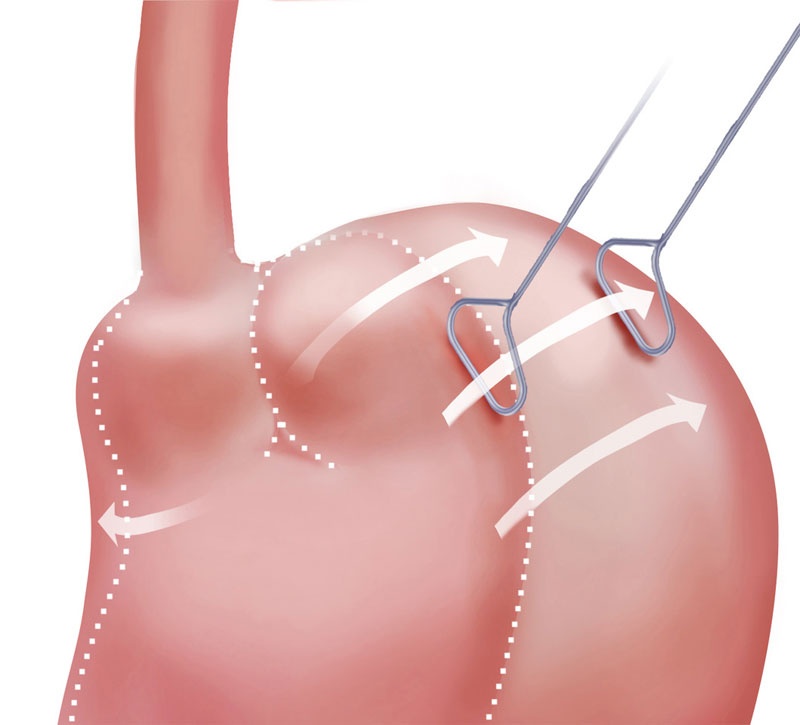 Lap Band: Revision, Removal, Conversion - UCLA Bariatric