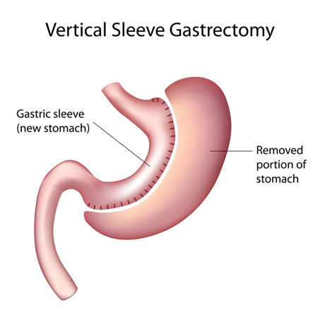gastric sleeve los angeles - what is sleeve gastrectomy? - ucla, Skeleton