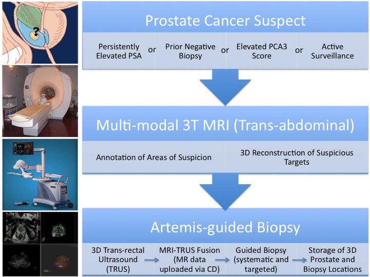 Ultrasound-MRI Fusion for Targeted Diagnosis of Prostate